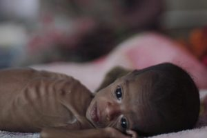 234886-malnutrition-in-india